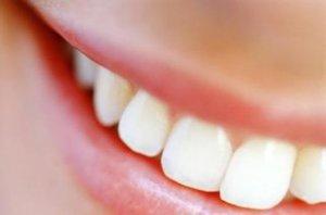 come avere denti sani