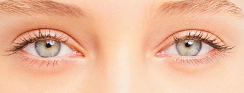 ridurre rughe contorno occhi